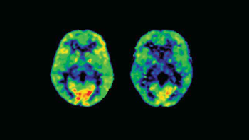 Stress Brain Image.png